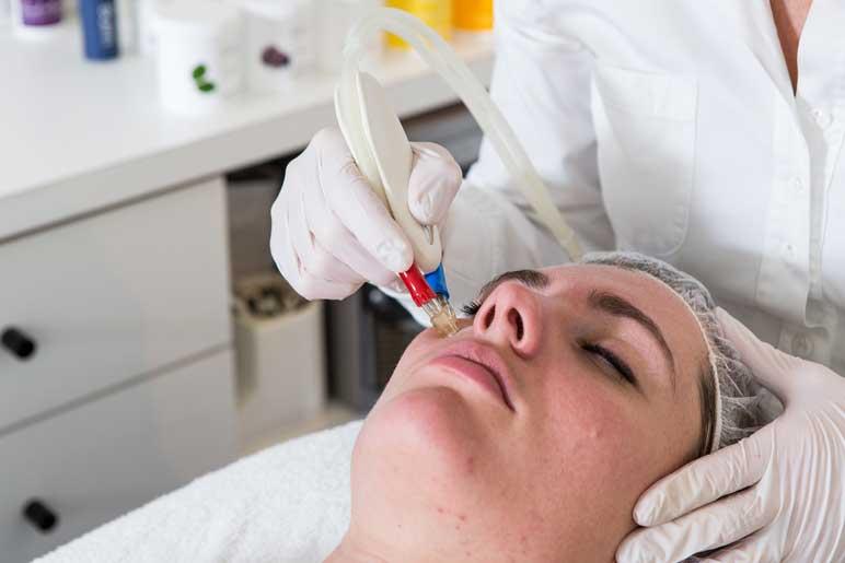 Acne behandelingen Huidspecialiste Marly
