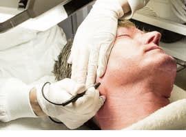 Huidoneffenheden verwijderen Huidspecialiste Marly